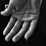 手汗がひどい方必見!対処法は病院での治療が最善?それとも?!